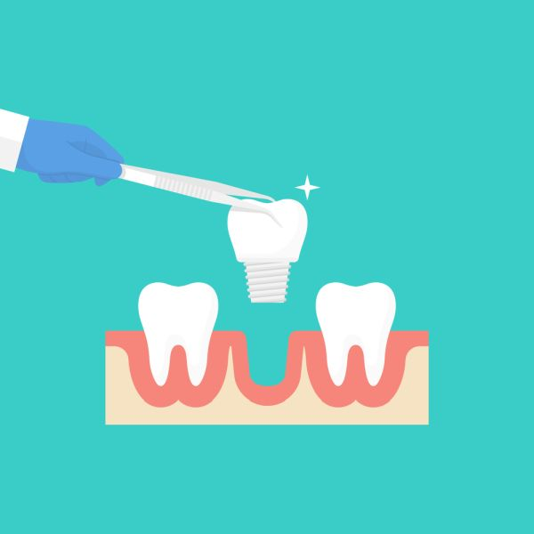 Signs You May Need To Replace A Dental Implant Crown