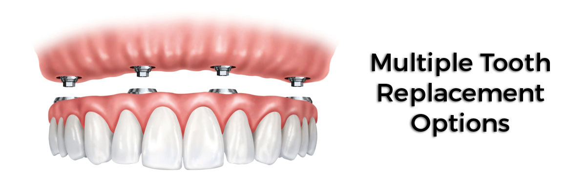 Fort Lauderdale Multiple Teeth Replacement Options